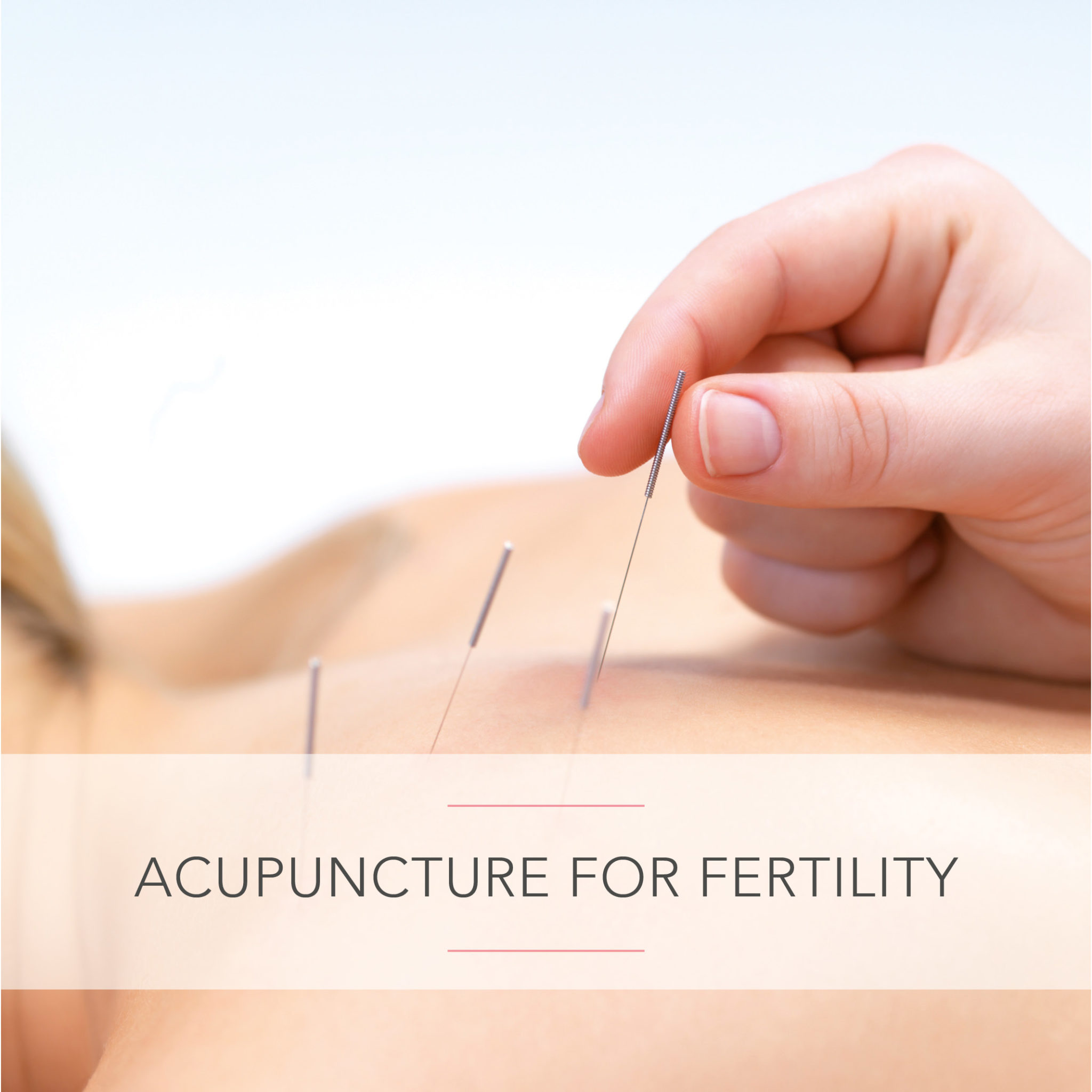 Complementary Fertility Therapies: Acupuncture for Fertility