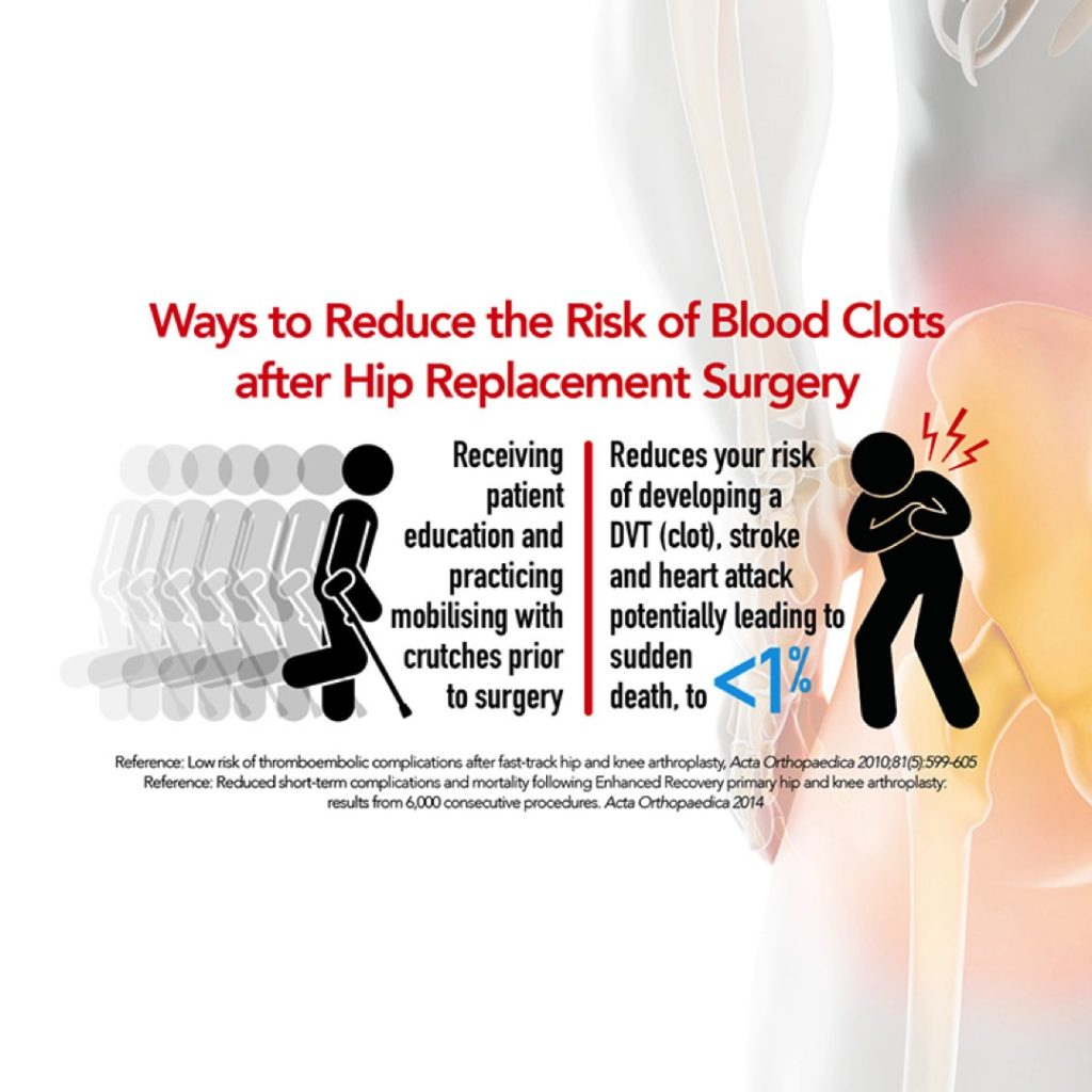 HIP REPLACEMENT - WHO HAS HIP REPLACEMENT SURGERY? | The